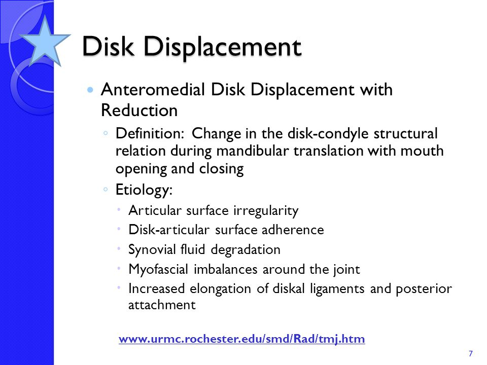 Disk Displacement Anteromedial Disk Displacement with Reduction