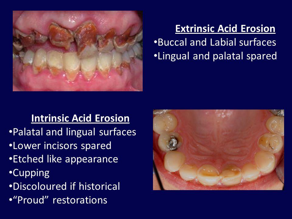 Extrinsic Acid Erosion Intrinsic Acid Erosion
