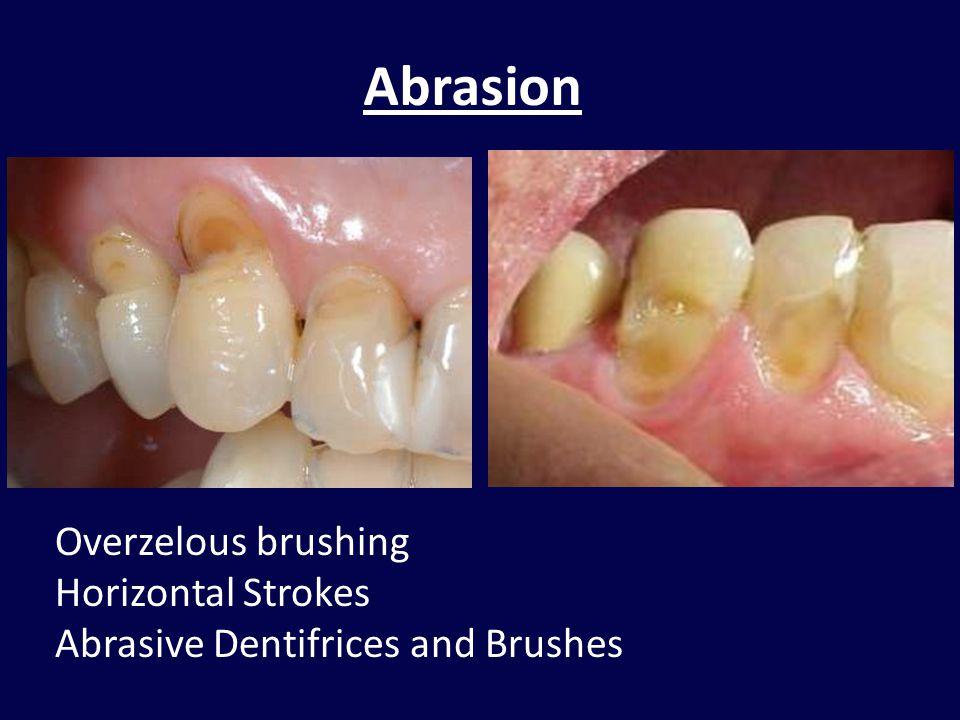 Abrasion Overzelous brushing Horizontal Strokes
