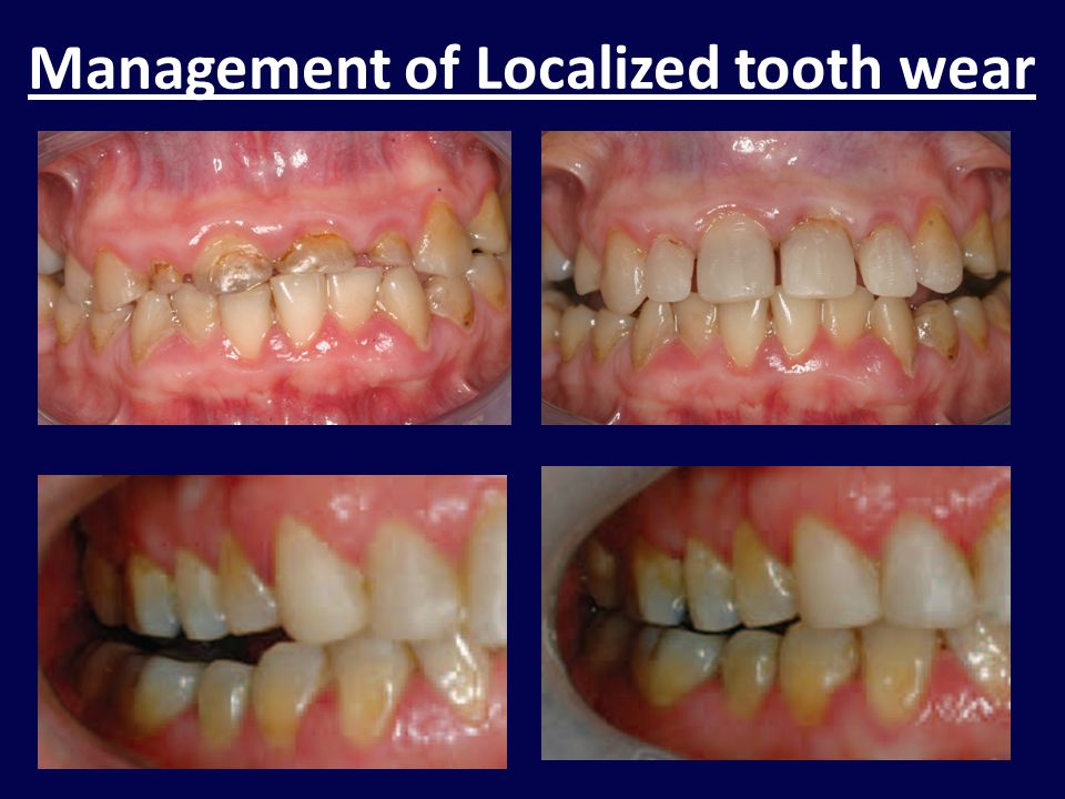 Management of Localized tooth wear