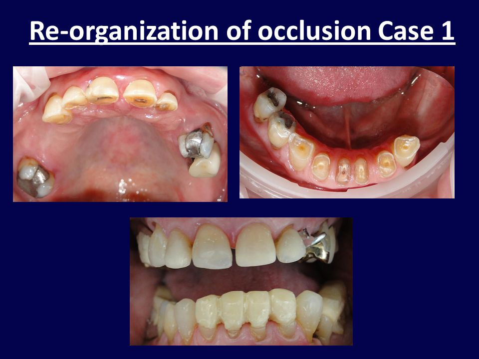 Re-organization of occlusion Case 1