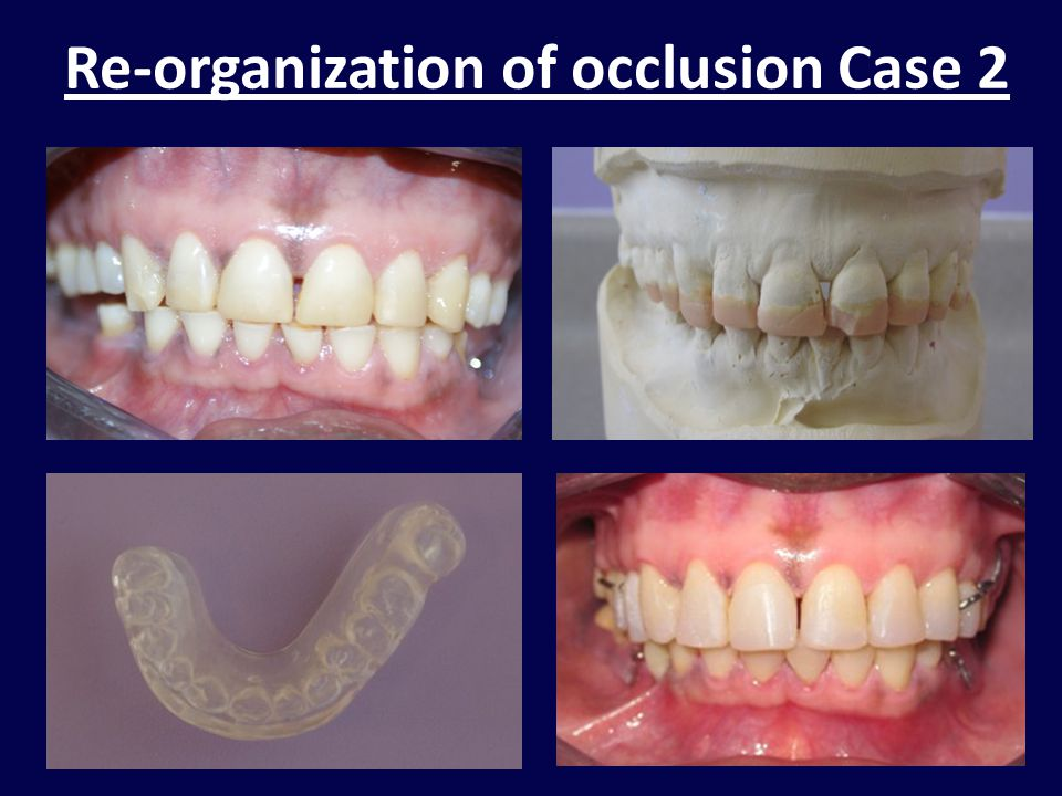 Re-organization of occlusion Case 2