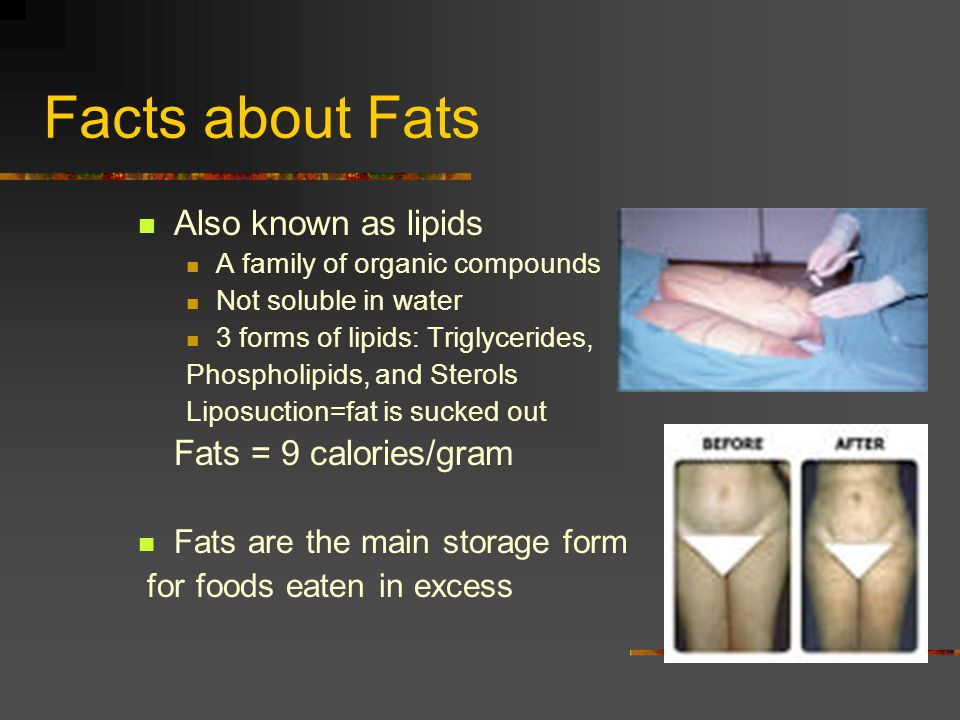 Facts about Fats Also known as lipids Fats = 9 calories/gram