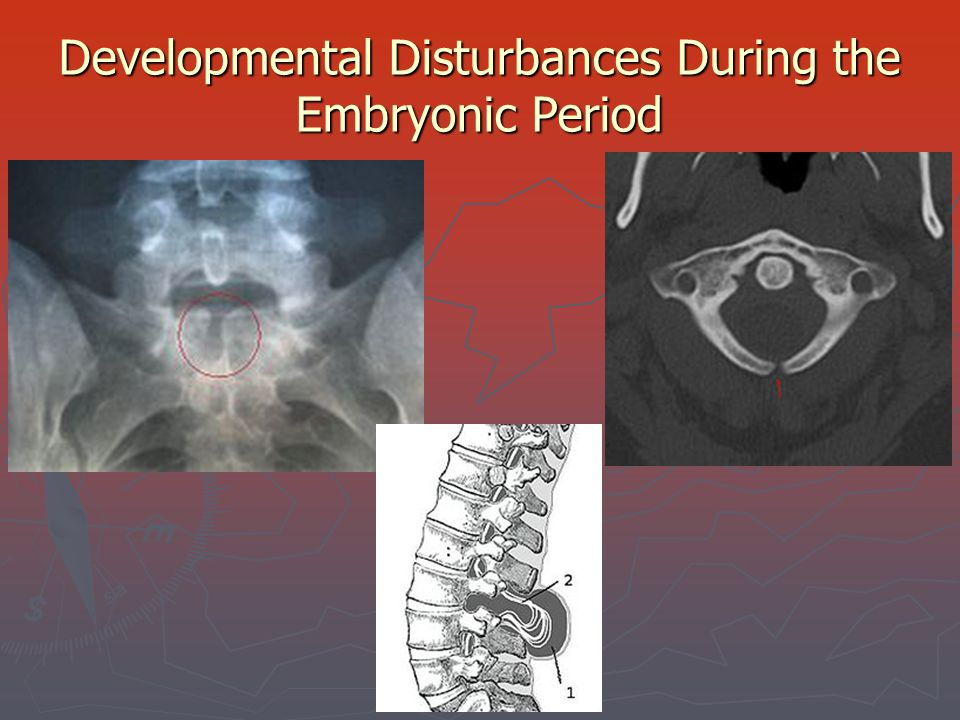 Developmental Disturbances During the Embryonic Period