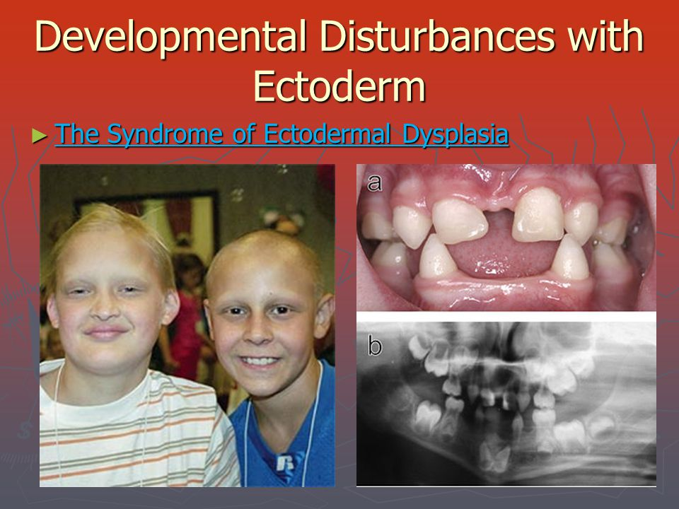 Developmental Disturbances with Ectoderm