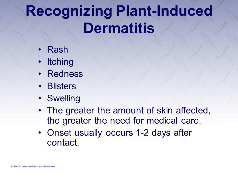 Recognizing Plant-Induced Dermatitis