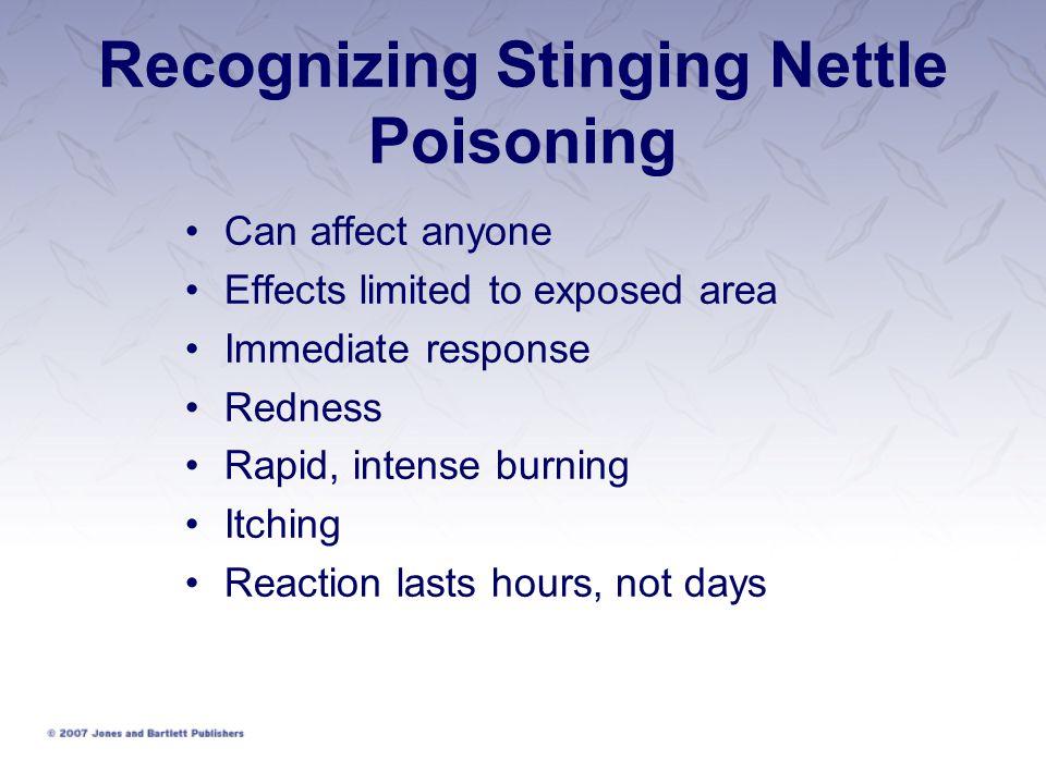 Recognizing Stinging Nettle Poisoning