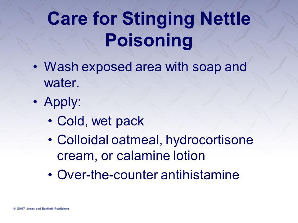 Care for Stinging Nettle Poisoning
