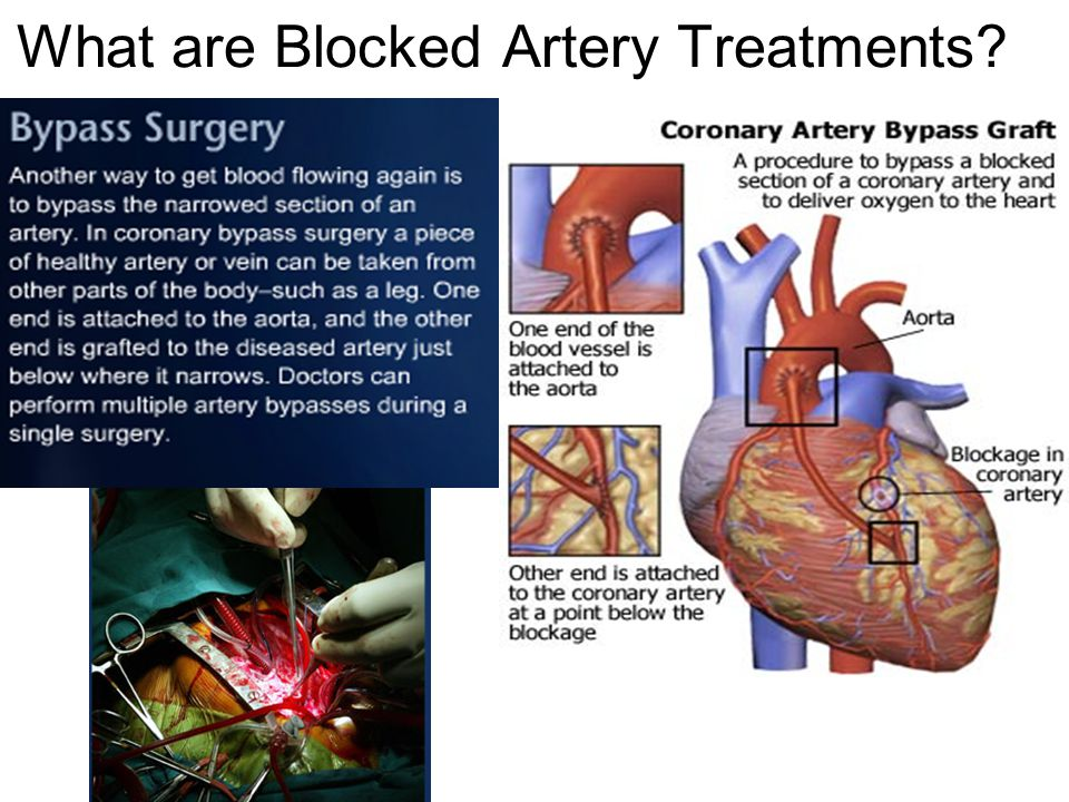 What are Blocked Artery Treatments