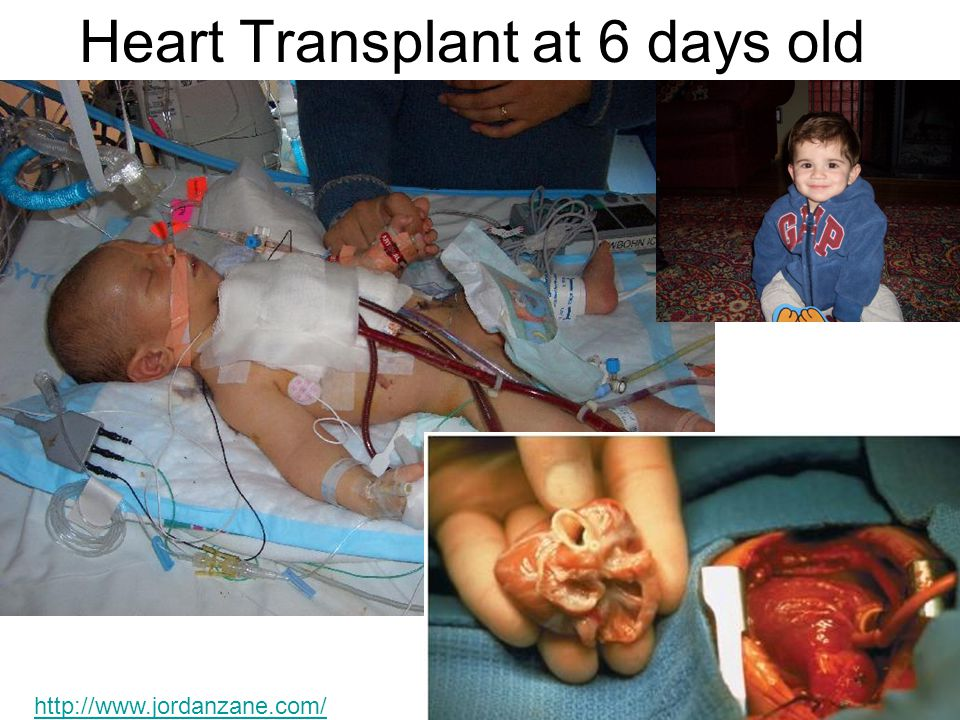 Heart Transplant at 6 days old