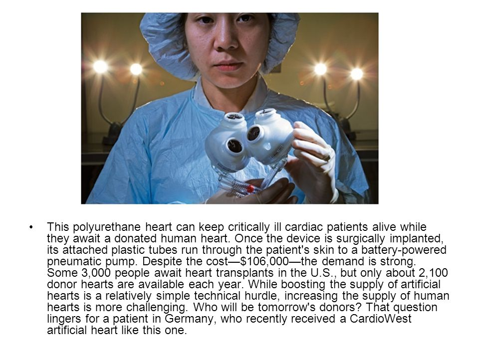 This polyurethane heart can keep critically ill cardiac patients alive while they await a donated human heart.