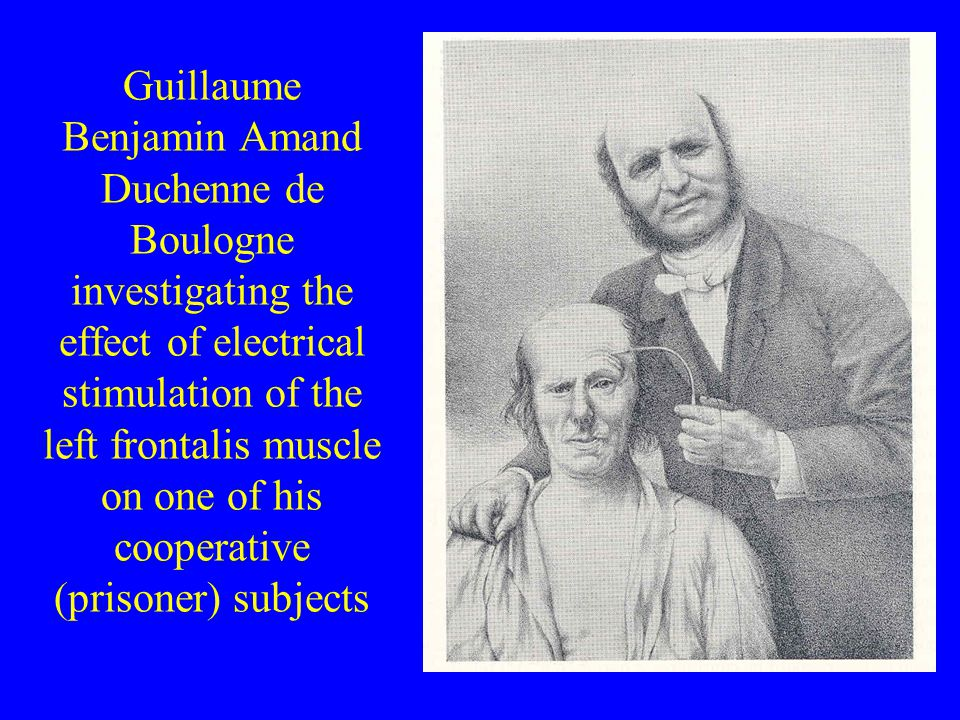 Guillaume Benjamin Amand Duchenne de Boulogne investigating the effect of electrical stimulation of the left frontalis muscle on one of his cooperative (prisoner) subjects