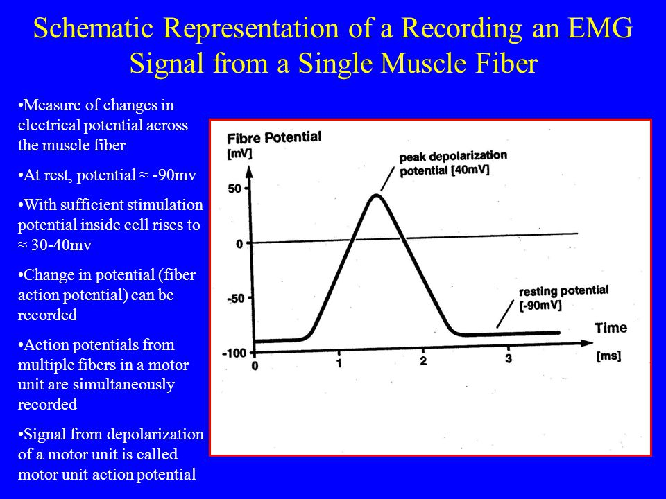 Schematic Representation of a Recording an EMG Signal from a Single Muscle Fiber