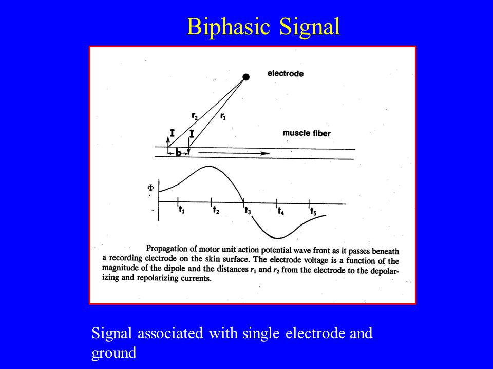 Biphasic Signal Signal associated with single electrode and ground