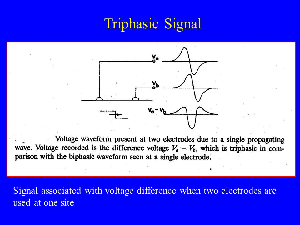 Triphasic Signal Signal associated with voltage difference when two electrodes are used at one site