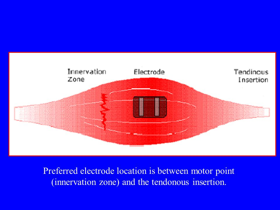 Preferred electrode location is between motor point (innervation zone) and the tendonous insertion.