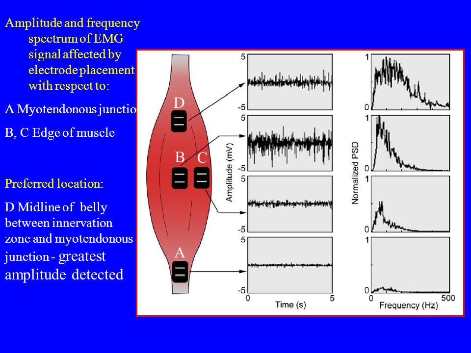 Amplitude and frequency spectrum of EMG signal affected by electrode placement with respect to: