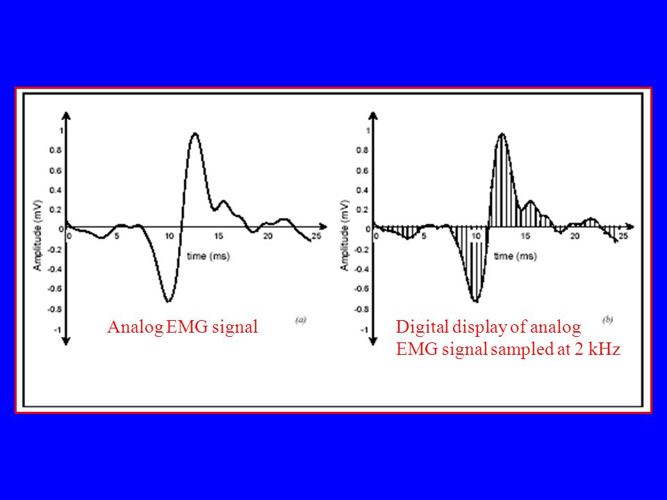Analog EMG signal Digital display of analog EMG signal sampled at 2 kHz