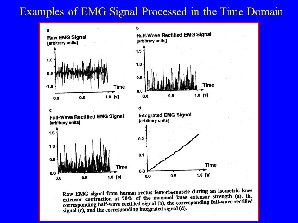 Examples of EMG Signal Processed in the Time Domain