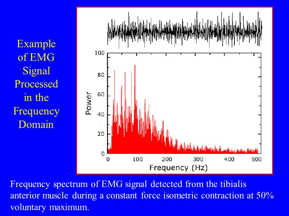 Example of EMG Signal Processed in the Frequency Domain