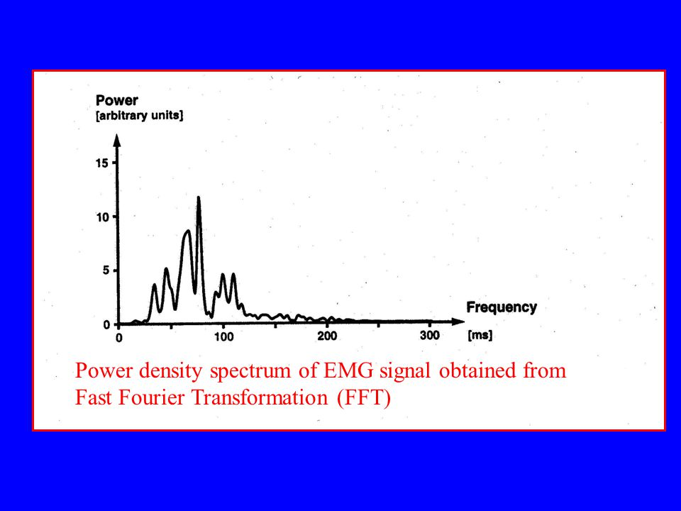 Power density spectrum of EMG signal obtained from Fast Fourier Transformation (FFT)