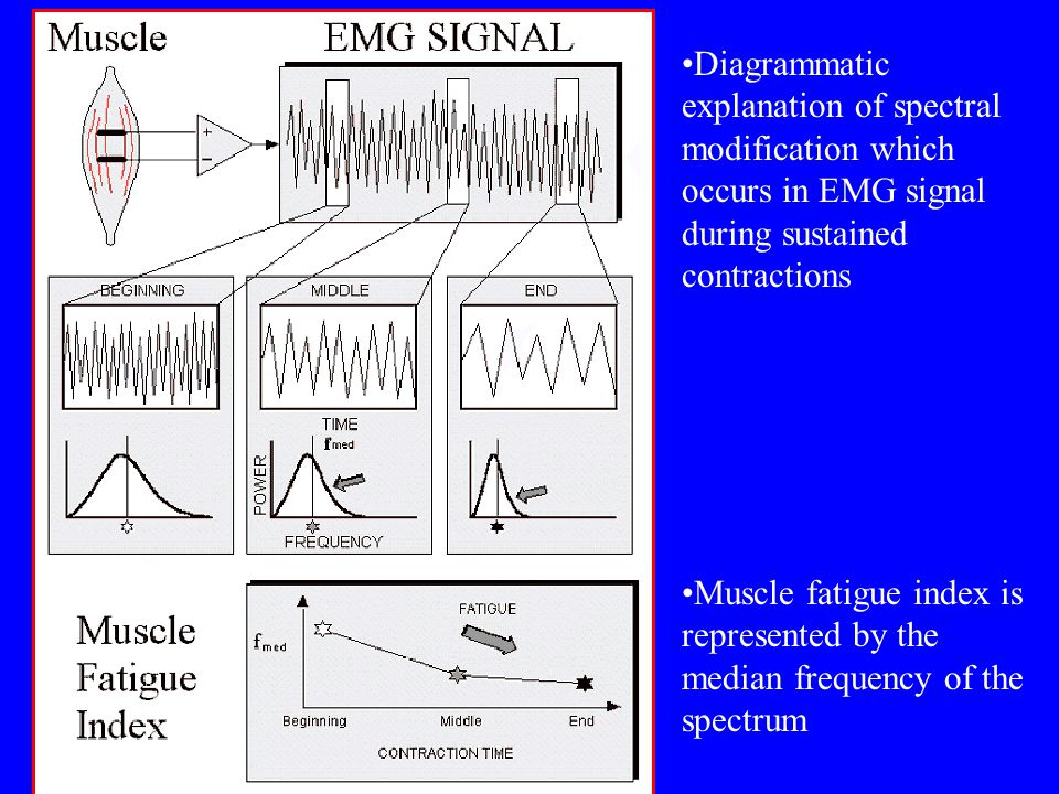 Diagrammatic explanation of spectral modification which occurs in EMG signal during sustained contractions