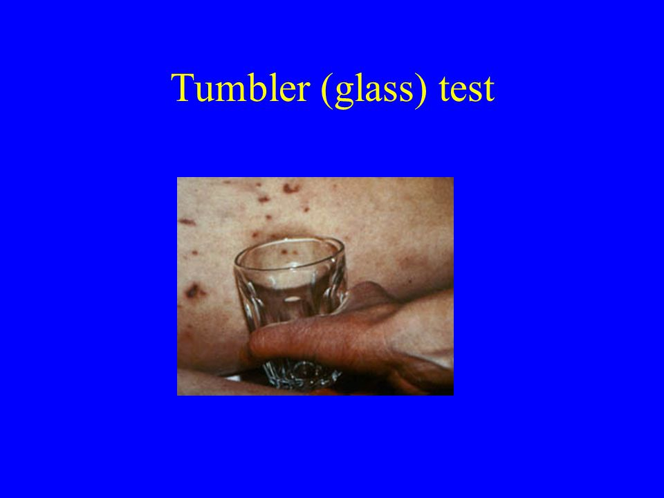 Con Samaan Tumbler (glass) test Con Samaan