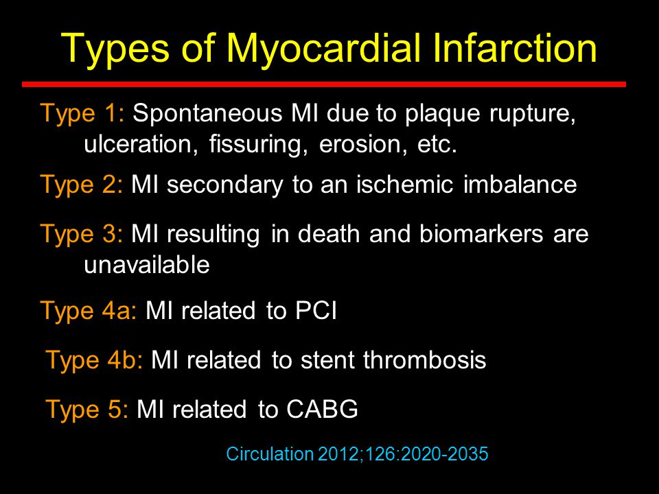 Types of Myocardial Infarction