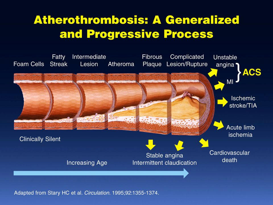 Atherothrombosis: A Generalized and Progressive Process