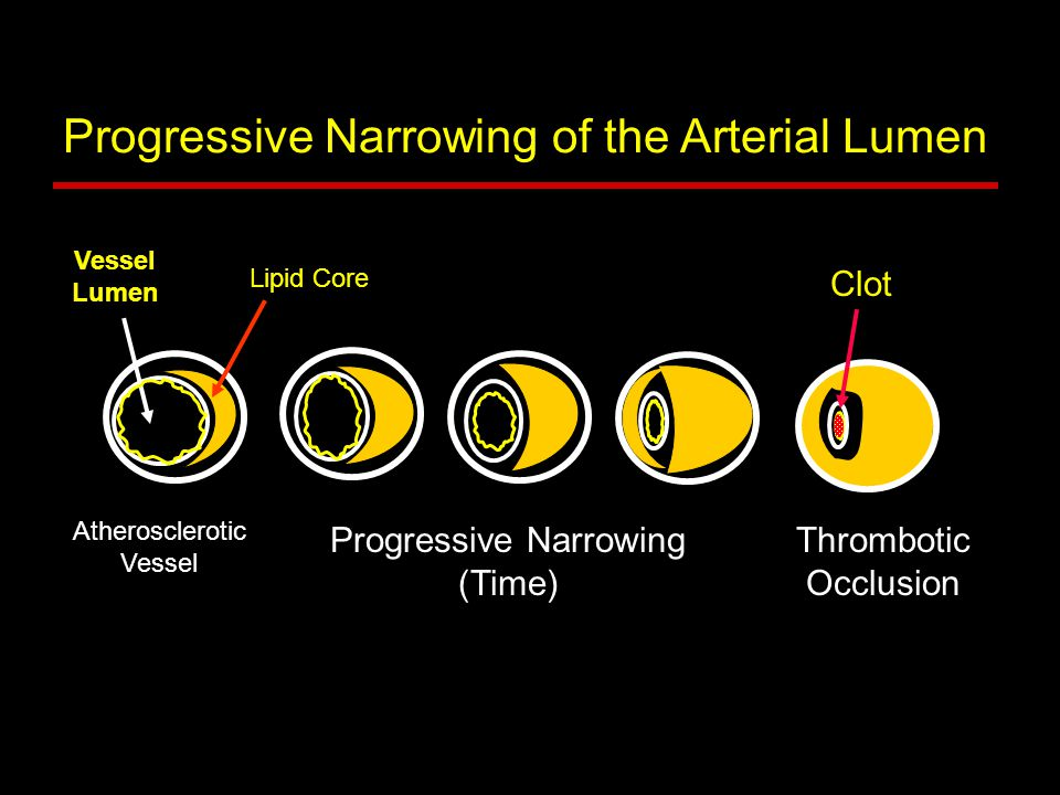 Progressive Narrowing of the Arterial Lumen