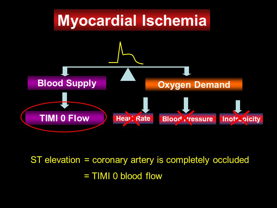 ST elevation = coronary artery is completely occluded