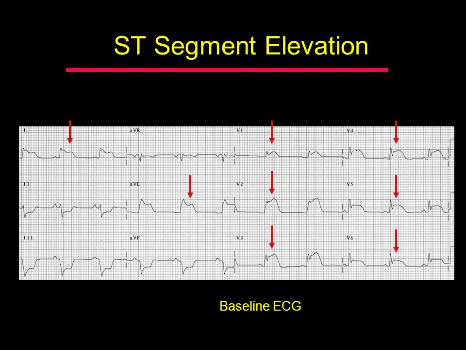 ST Segment Elevation Baseline ECG