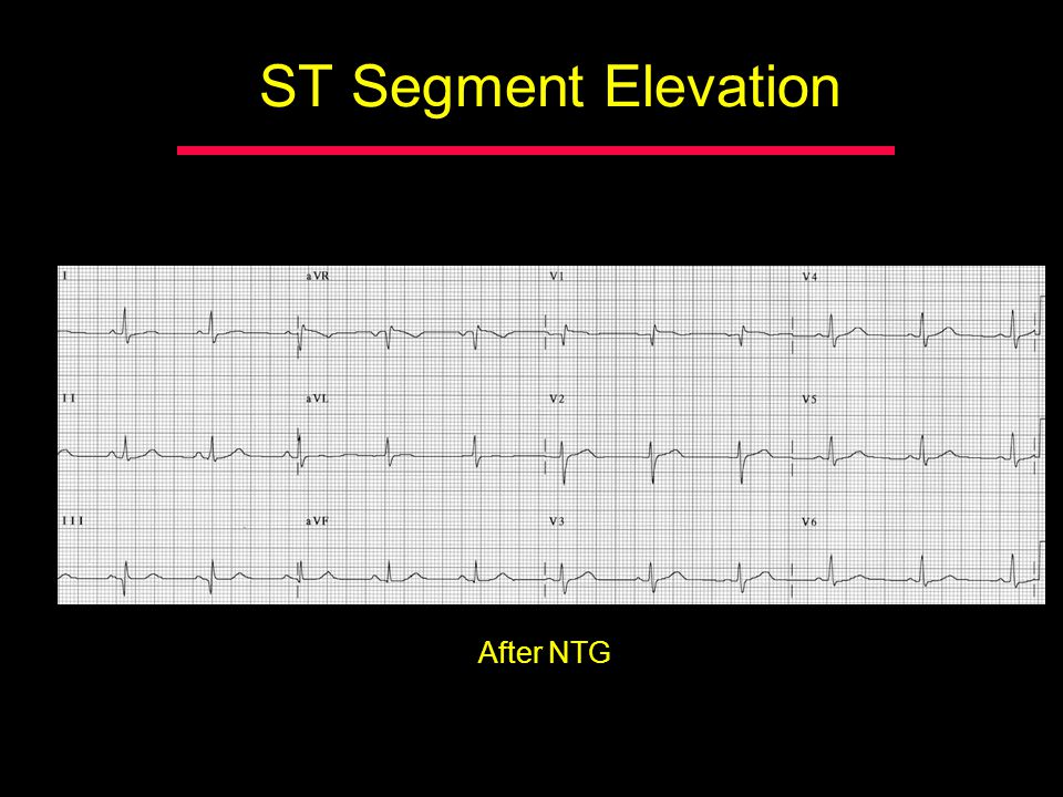 ST Segment Elevation After NTG