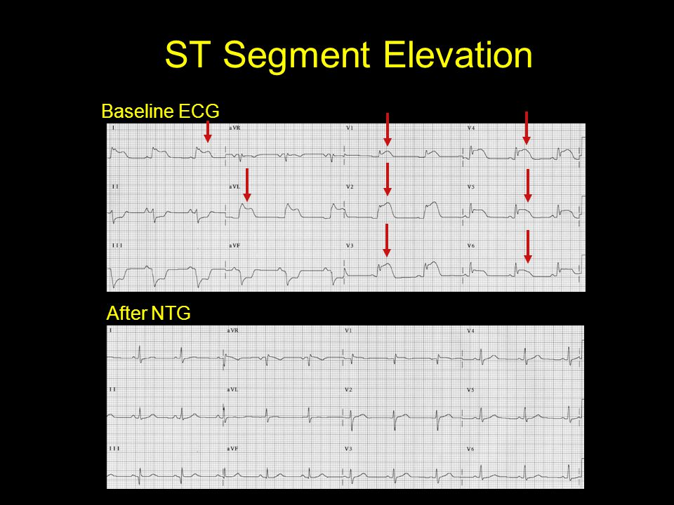 ST Segment Elevation Baseline ECG After NTG