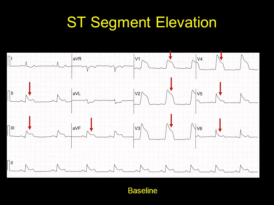 ST Segment Elevation Baseline