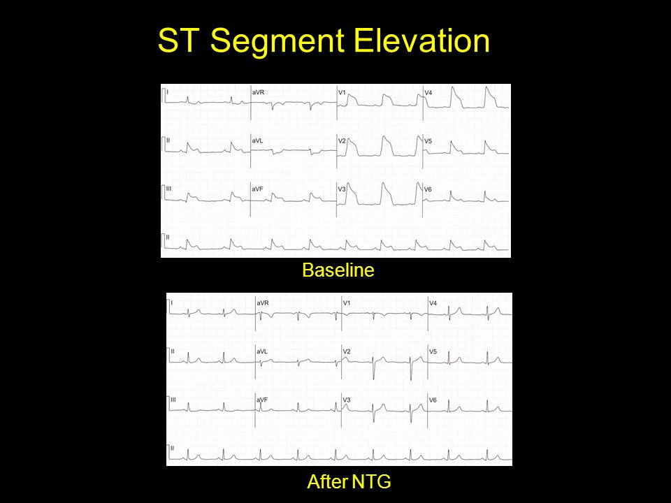 ST Segment Elevation Baseline After NTG