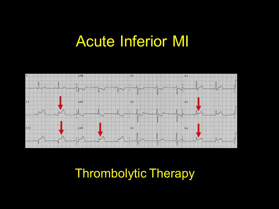 Acute Inferior MI Thrombolytic Therapy