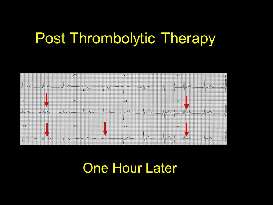 Post Thrombolytic Therapy
