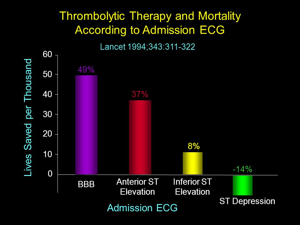 Thrombolytic Therapy and Mortality According to Admission ECG
