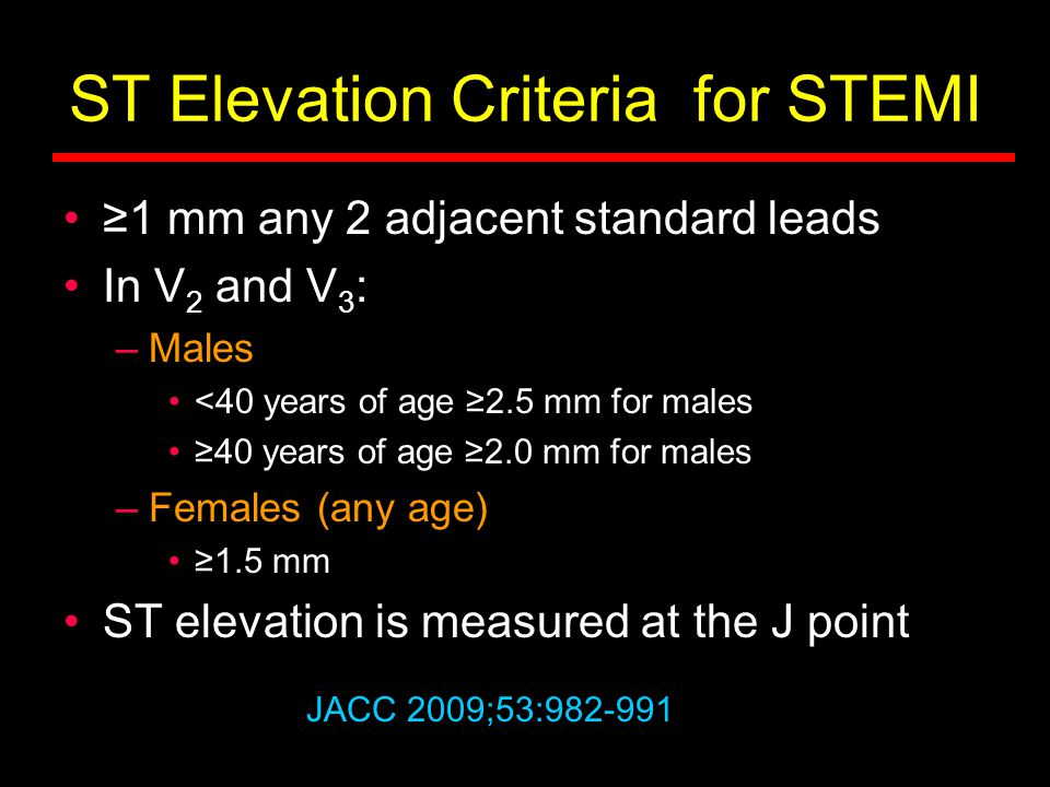 ST Elevation Criteria for STEMI