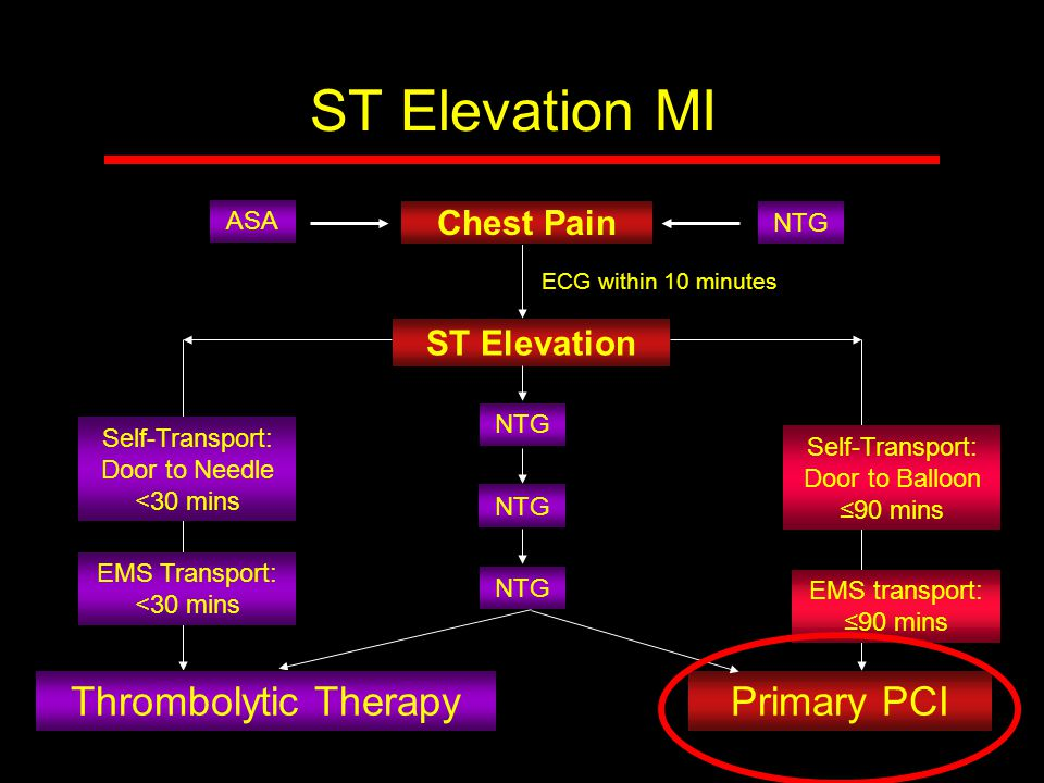ST Elevation MI Thrombolytic Therapy Primary PCI Chest Pain