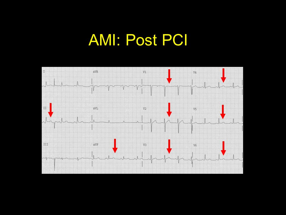 AMI: Post PCI