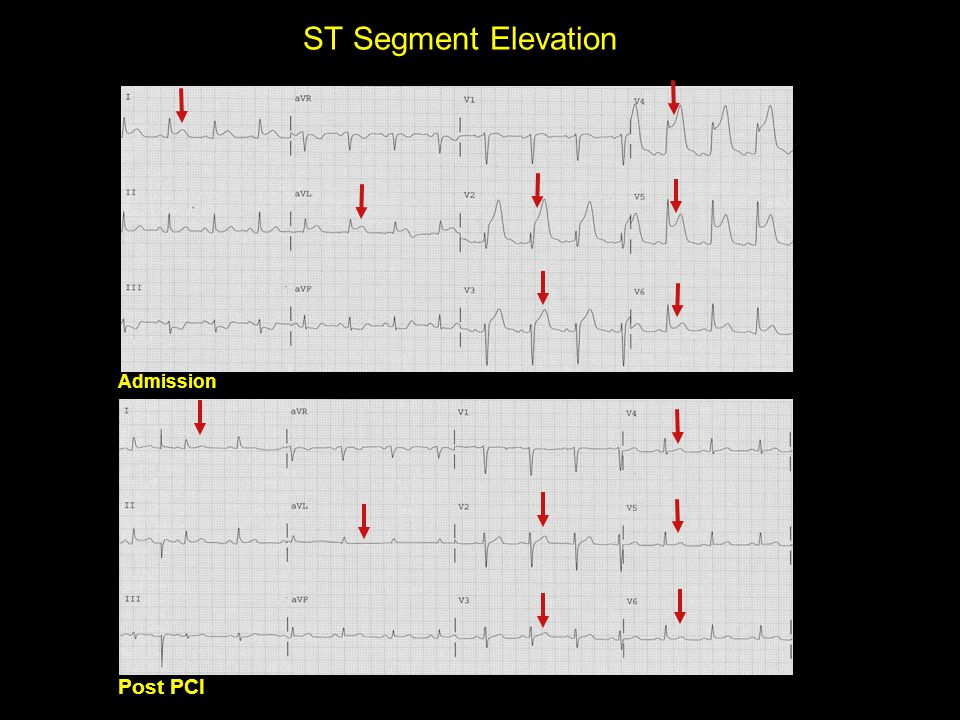 ST Segment Elevation Admission Post PCI