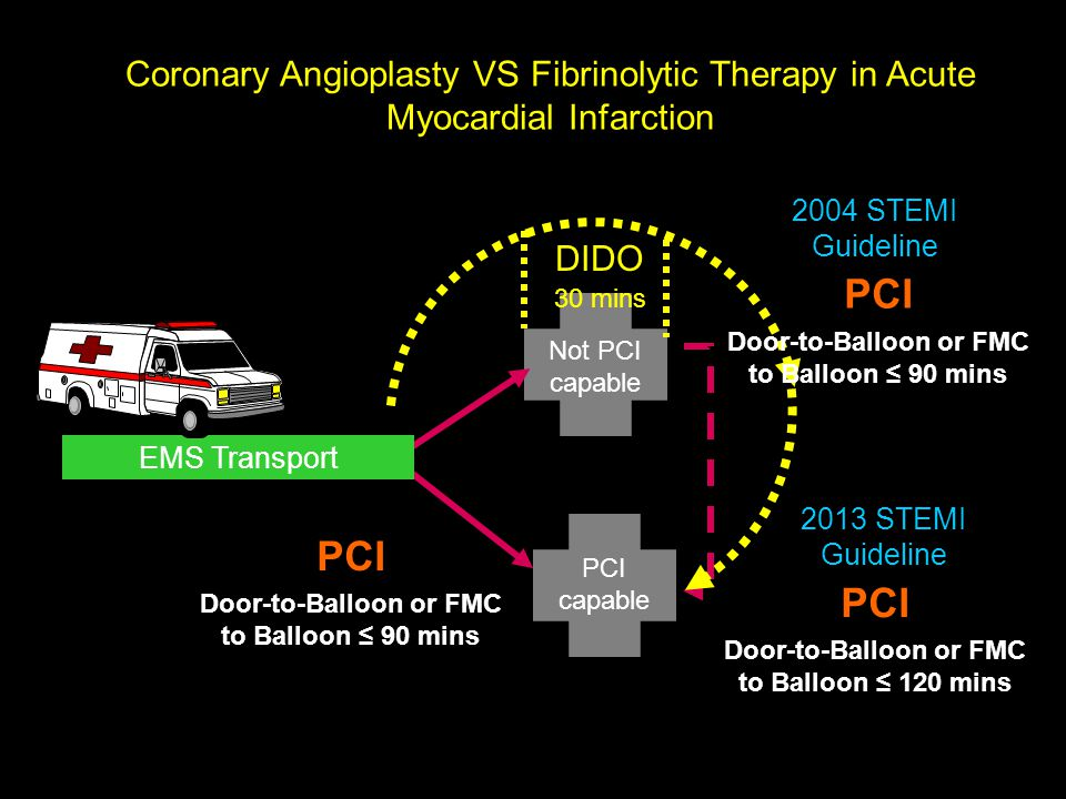 Coronary Angioplasty VS Fibrinolytic Therapy in Acute Myocardial Infarction