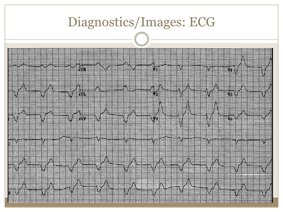 Diagnostics/Images: ECG