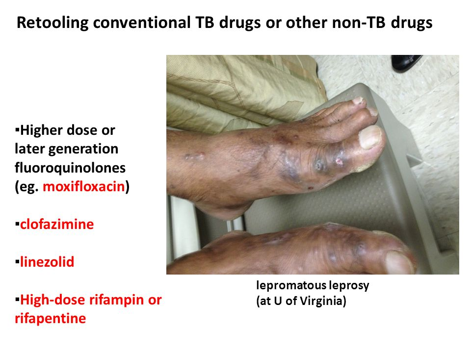 Retooling conventional TB drugs or other non-TB drugs