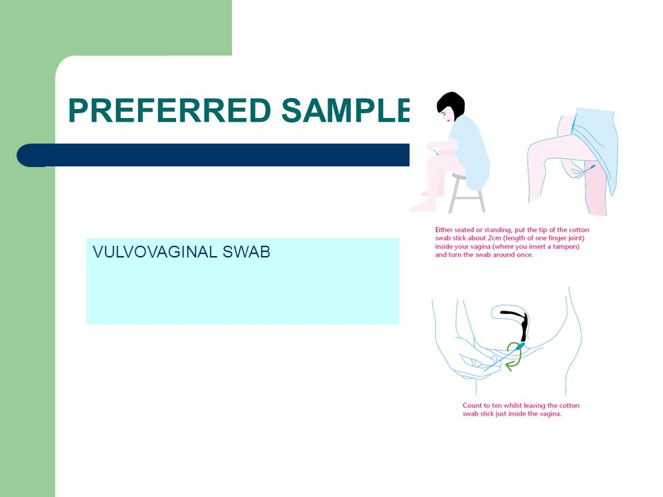 PREFERRED SAMPLE VULVOVAGINAL SWAB