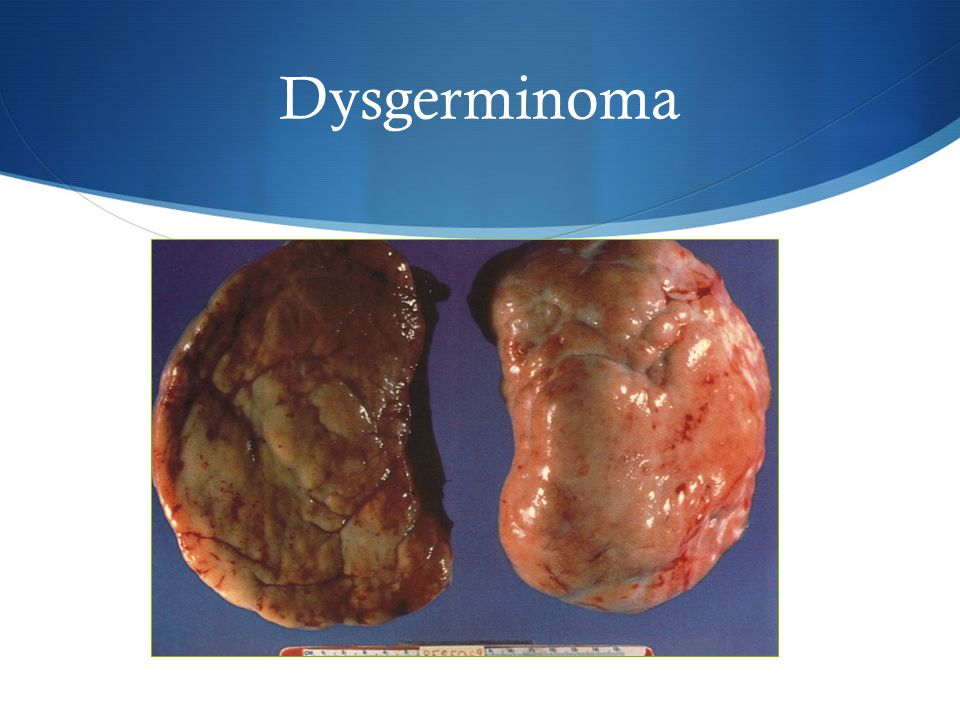 Dysgerminoma No or very little areas of hemorrhage or necrosis – if these are present, think about a mixed germ cell tumor.