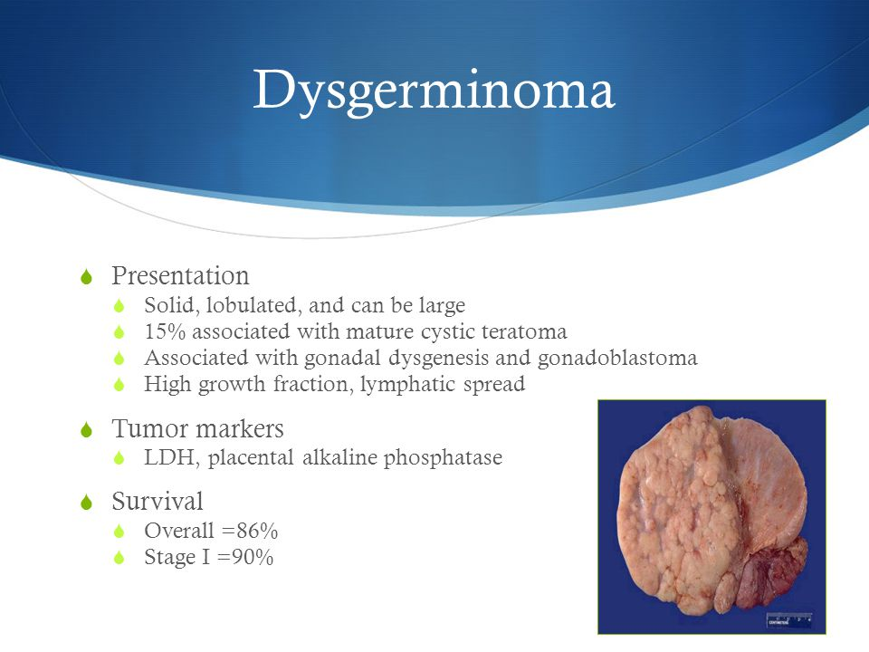 Dysgerminoma Presentation Tumor markers Survival