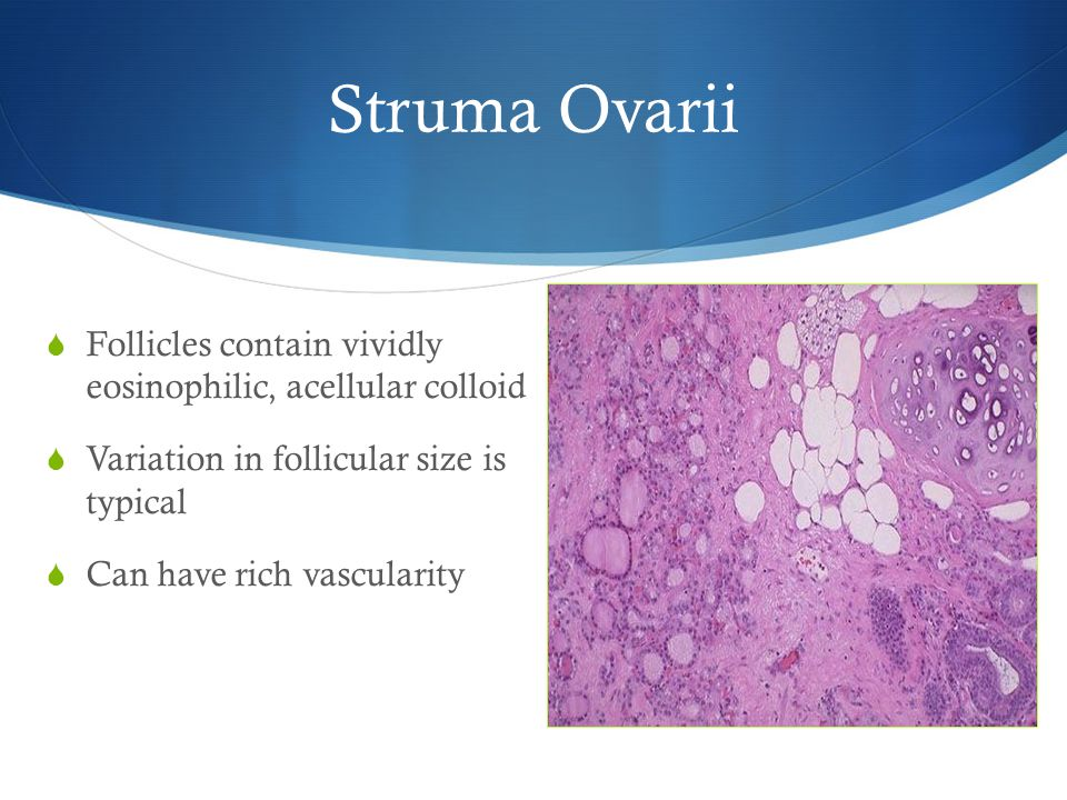 Struma Ovarii Follicles contain vividly eosinophilic, acellular colloid. Variation in follicular size is typical.